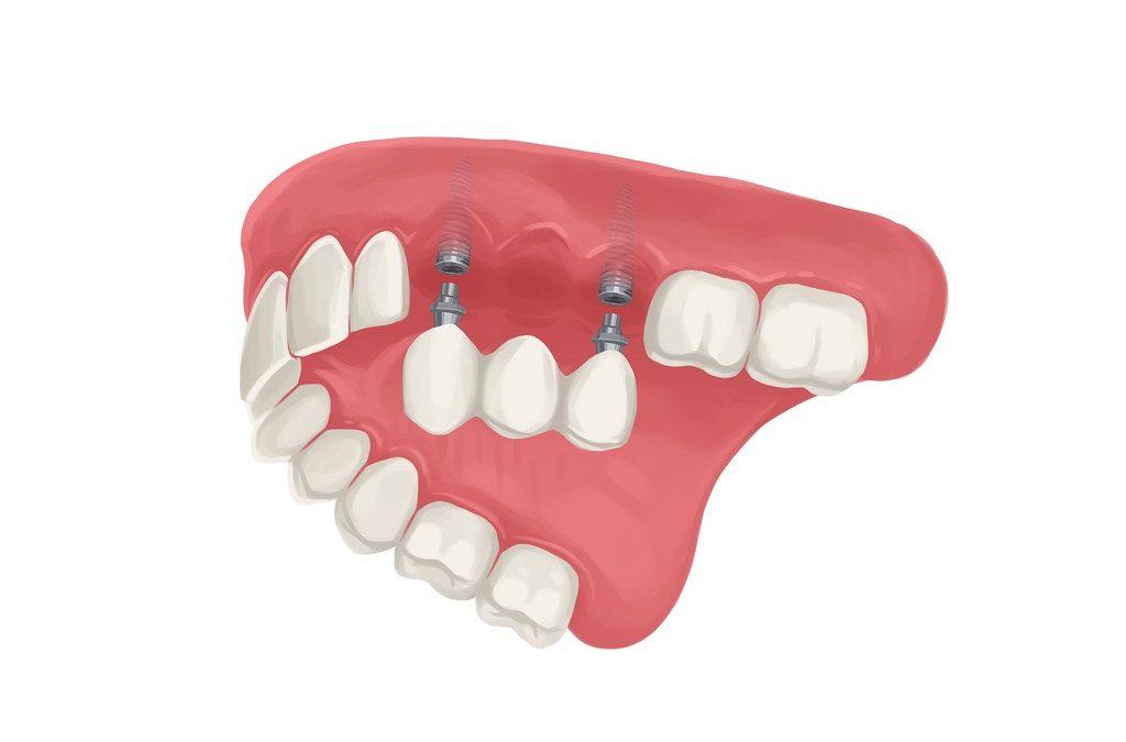 Dental Implant Care – Types of Teeth Thread
