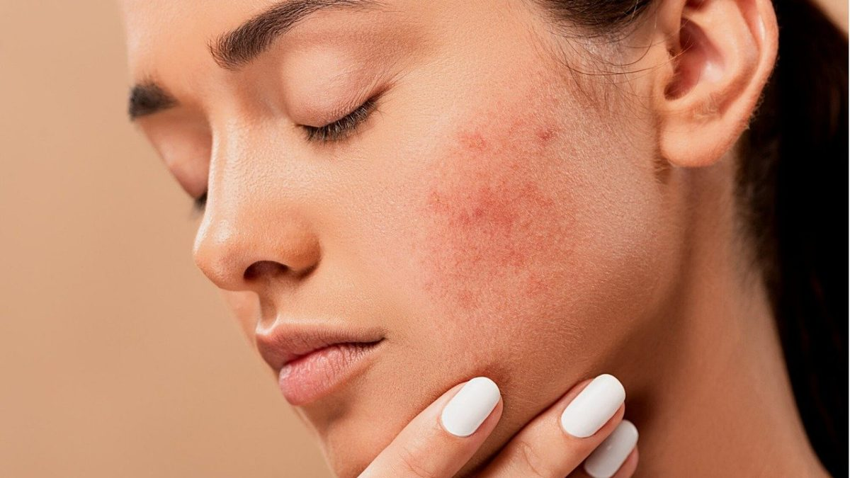 Various options for acne treatment