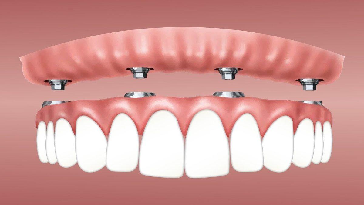 Dental implants – How long will care be taken?