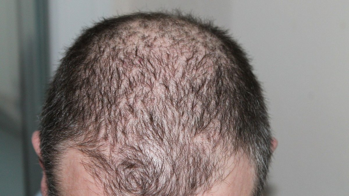Tips for natural treatments for hair loss