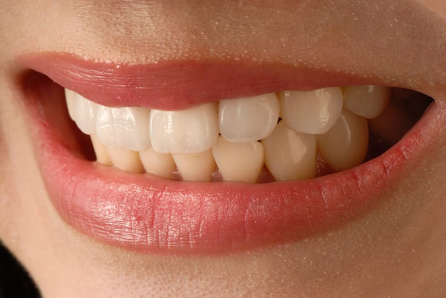 Defeat your teeth anxiety